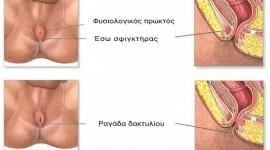 Ραγάδα δακτυλίου