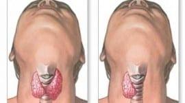 Οι θυρεοειδικές παθήσεις και το Χειρουργείο.