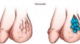 Λαπαροσκοπική αποκατάσταση κιρσοκήλης