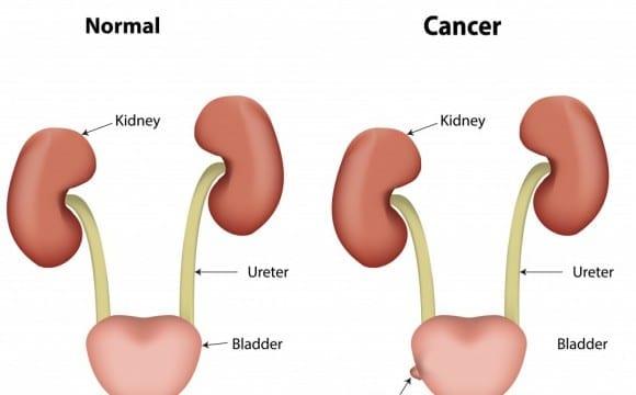 Γνώση και επαγρύπνηση για τον καρκίνο της ουροδόχου κύστης