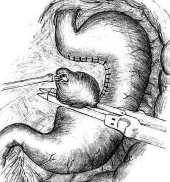 Όγκοι στομάχου, σύγχρονη χειρουργική προσέγγιση!