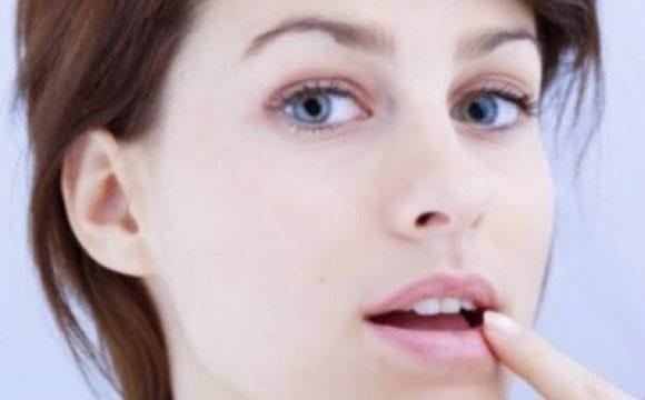 Σημάδια στο πρόσωπο που προειδοποιούν για ασθένειες