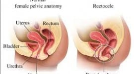 Συμπτώματα,διάγνωση και πρόληψη της Ορθοκήλης