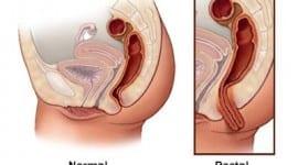 Θεραπευτική αντιμετώπιση της ορθοκήλης