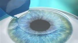 Λέιζερ μυωπίας με Femto laser