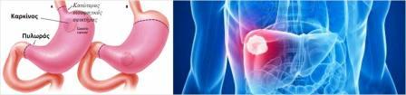 Ο καρκίνος του στομάχου, από τους πιο συχνούς αλλά με πτωτικές τάσεις στην Ευρώπη