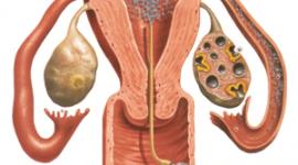 Τι είναι η πρόκληση ωορρηξίας γιατρέ?