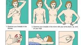 Πρωτογενής και δευτερογενής πρόληψη κακοήθειας μαστού!